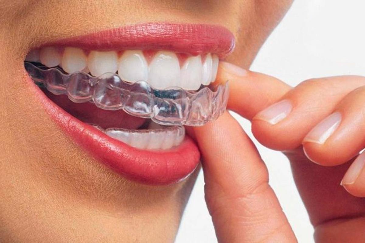 Invisalign--Dental