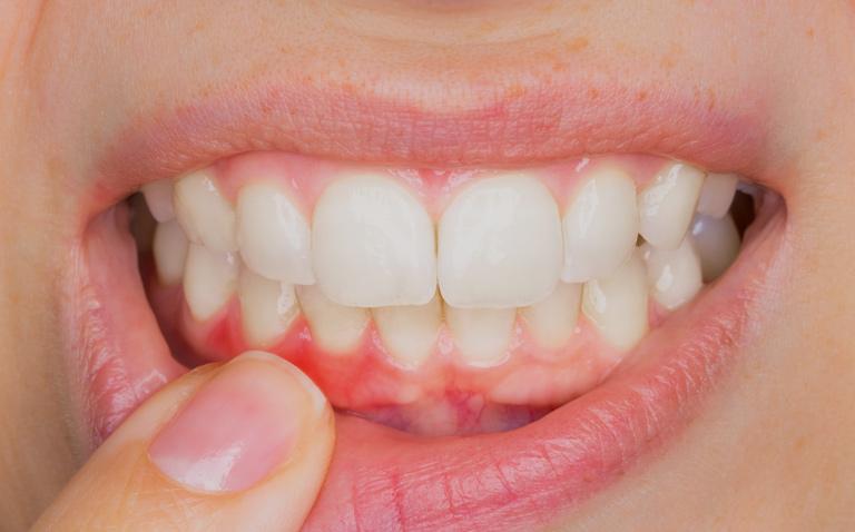 enfermedad periodontal en sevilla