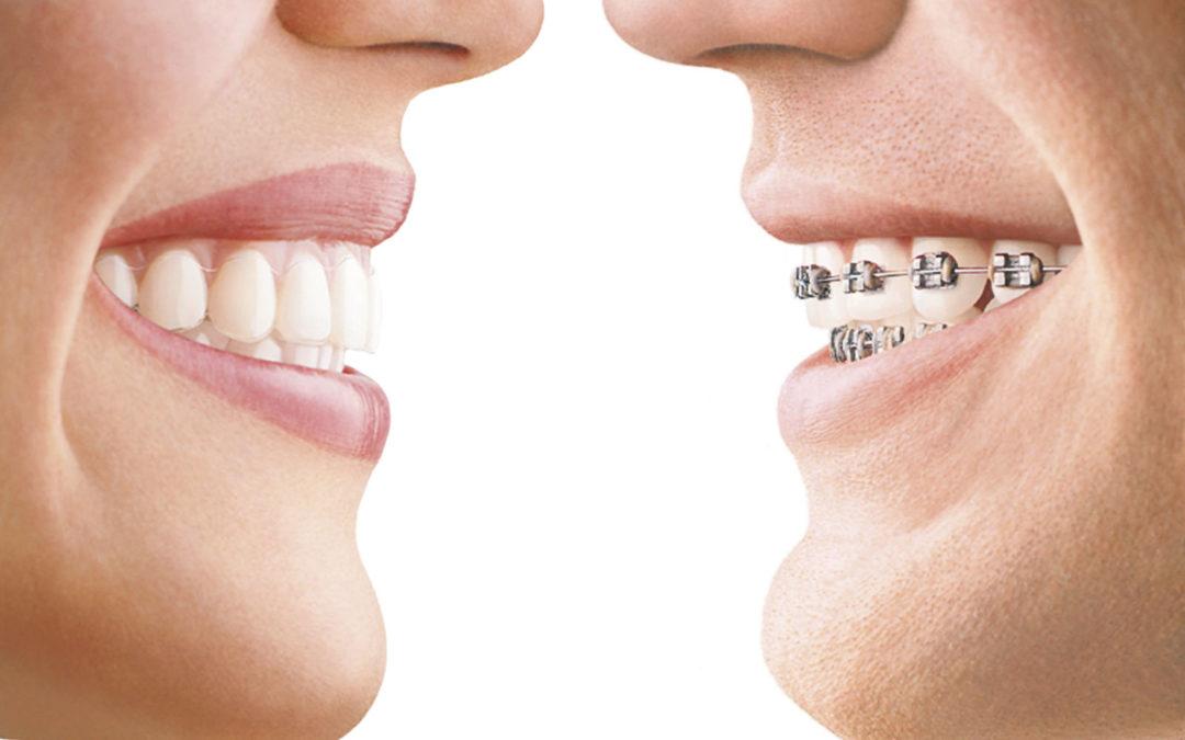 Ortodoncia Invisible en Sevilla, la mejor opción