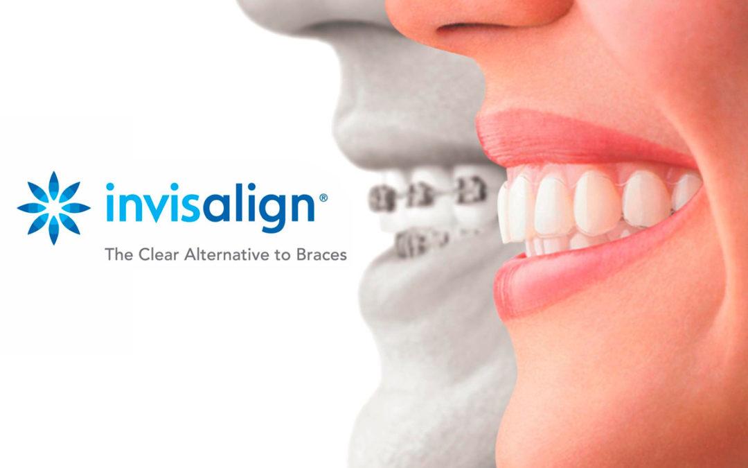 Ortodoncia Invisalign: ¿En qué consiste y quién puede usarlo?