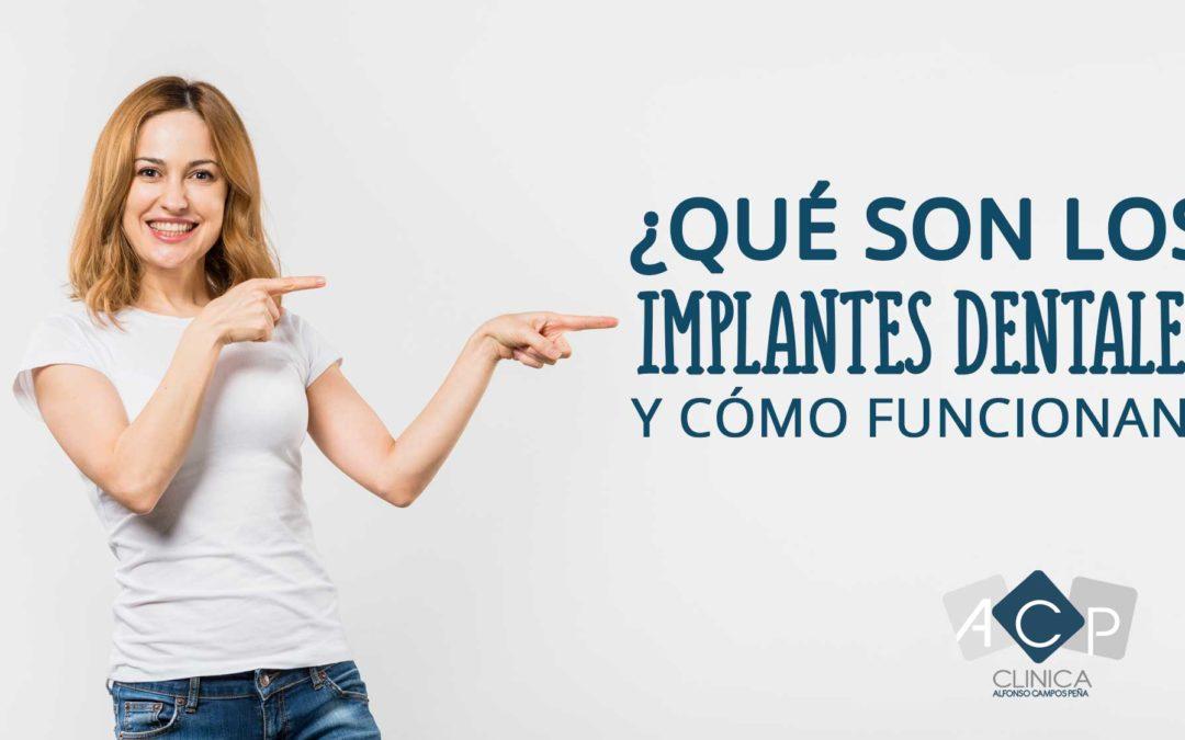 Qué son los implantes dentales y cómo funcionan