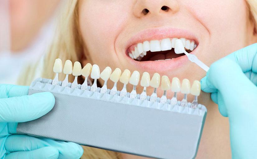 Blanqueamiento dental: ¿cómo lucir una sonrisa saludable?