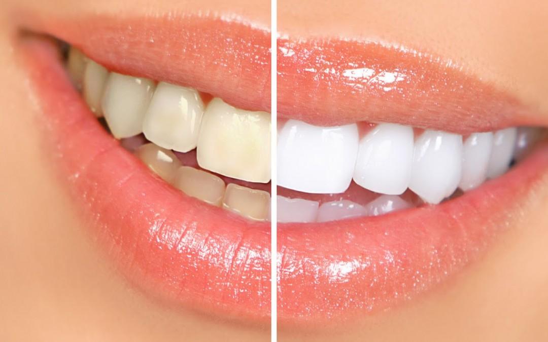 blanqueamiento de dientes vitales