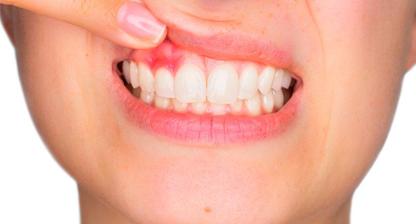 Enfermedad periodontal, lo que debes saber