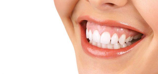 Sonrisa gingival: a qué se debe y cómo se soluciona