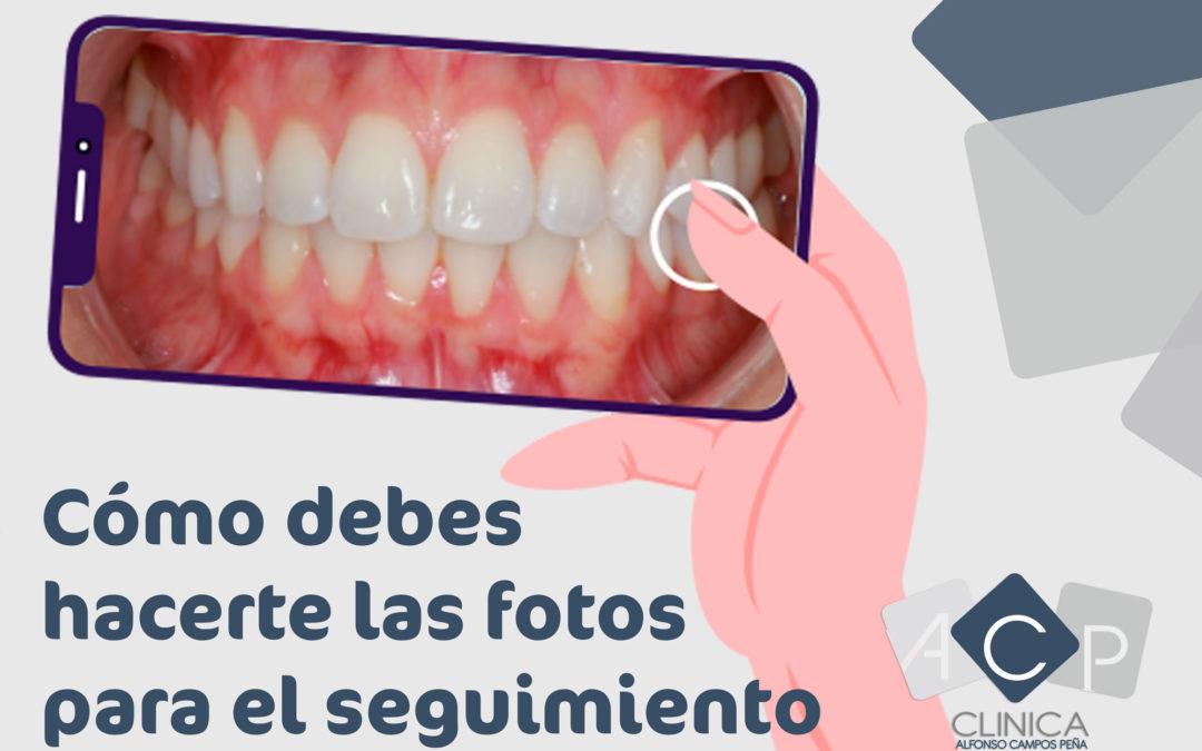Cómo hacerte las fotos para el seguimiento de tu ortodoncia